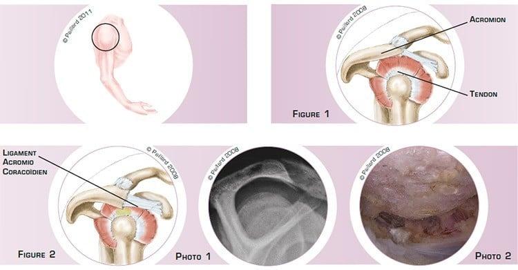 Qu'est ce qu'un conflit sous-acromial de l'épaule? Définition par dr Paillard: Chirurgien orthopédique
