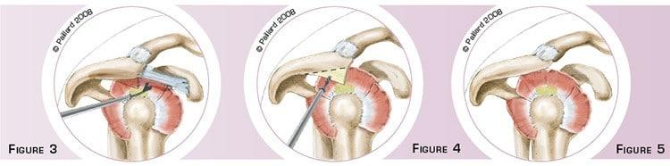 Acromioplastie de l'épaule à Paris par docteur Paillard: Chirurgien orthopédique
