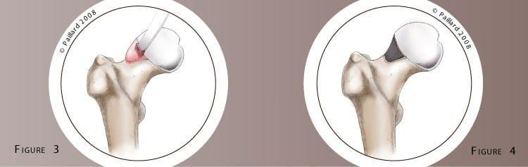 Qu'est ce qu'une arthrolyse de hanche? Définition par dr Paillard: Chirurgien orthopédique à Paris