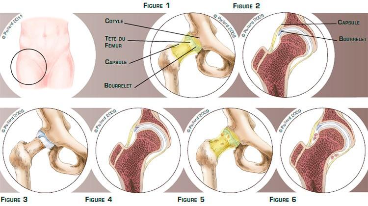Qu'est ce qu'une pathologie intra-articulaire de la hanche? Définition par dr Paillard
