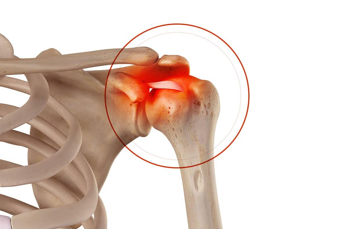 Chirurgie de l'épaule à Paris: Calcification des tendons de l'épaule - Dr Paillard