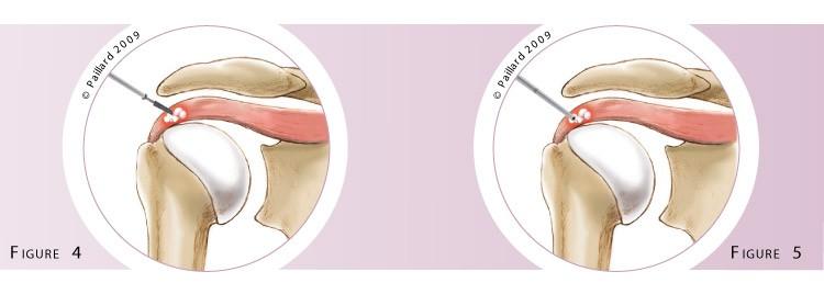 Qu'est ce qu'une évacuation arthroscopique d'une calcification de l'épaule? Définition par dr Paillard