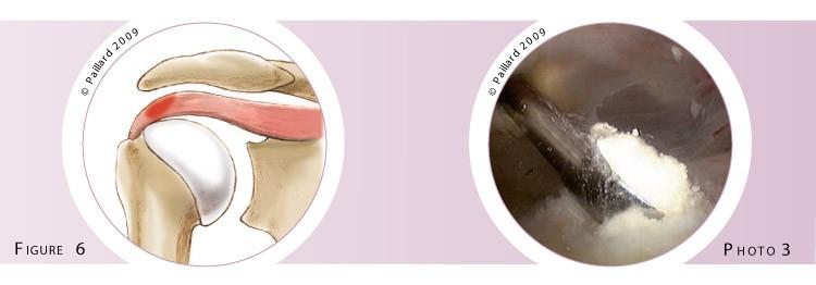Chirurgie calcification des tendons de l'épaule à Paris - Dr Paillard, Chirurgien orthopédique