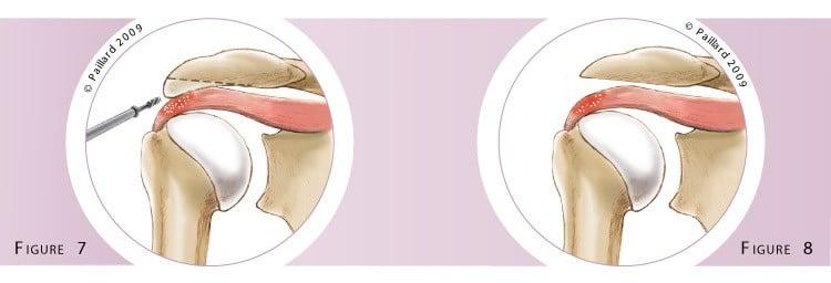 Traitement des calcifications de l'épaule à Paris - Dr Paillard, Chirurgien orthopédique