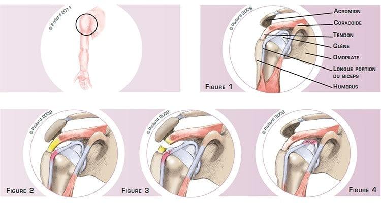 Qu'est ce qu'une lésion du biceps au niveau de l'épaule? Définition par dr Paillard
