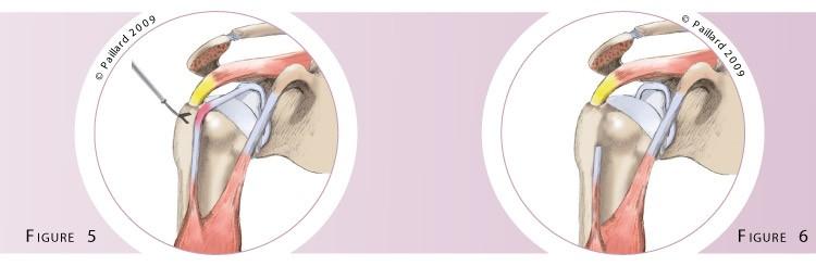 Qu'est ce qu'une chirurgie du biceps? Définition par dr Paillard
