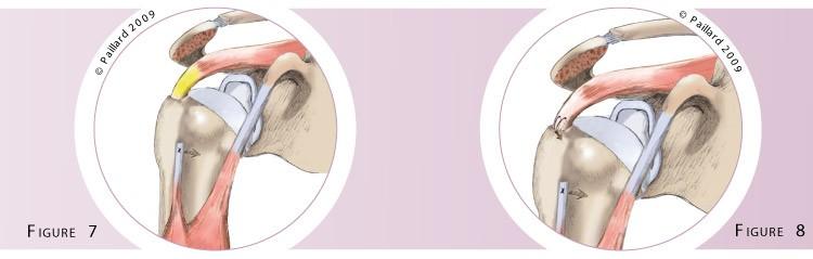 Traitement de la lésion du biceps au niveau de l'épaule à Paris - Dr Paillard