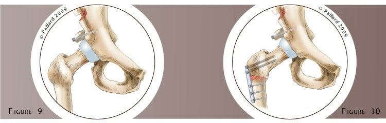 Qu'est ce qu'une chirurgie conservatrice de la hanche? Définition par dr Paillard
