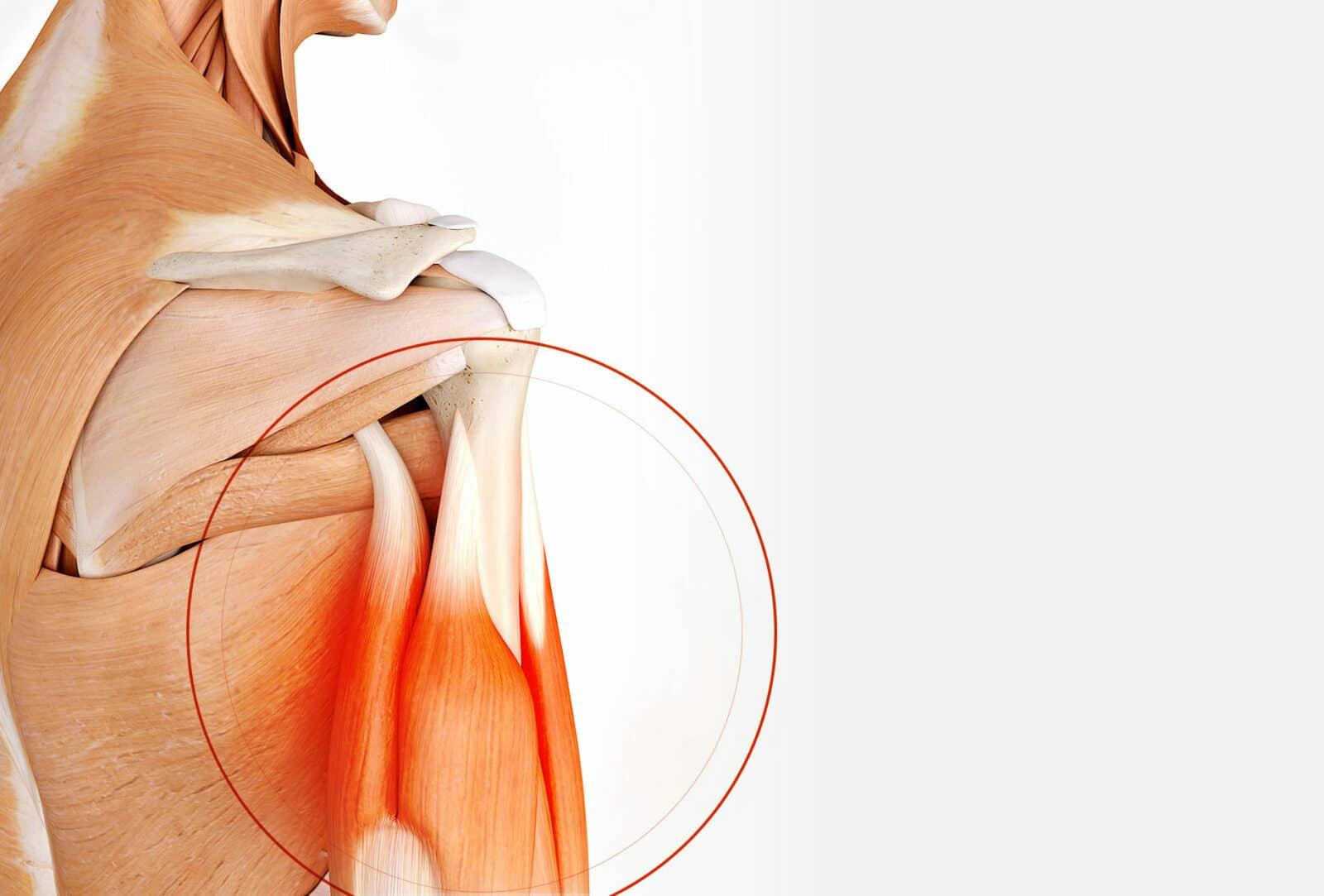Chirurgie de l'épaule: Chirurgie du biceps à Paris - Dr Paillard
