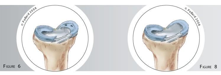 Qu'est ce qu'une chirurgie méniscale? Définition par dr Paillard, Chirurgien orthopédique