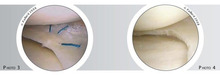 Traitement de la lésion méniscale à Paris - Dr Paillard, Chirurgien orthopédique