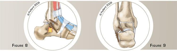 Chirurgie de la cheville à Paris: Reconstruire le faisceau antérieur et le faisceau moyen du Ligament Latéral Externe