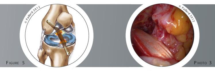 Qu'est ce qu'une ligamentoplastie du croisé antérieur sous arthroscopie? Définition par dr Paillard