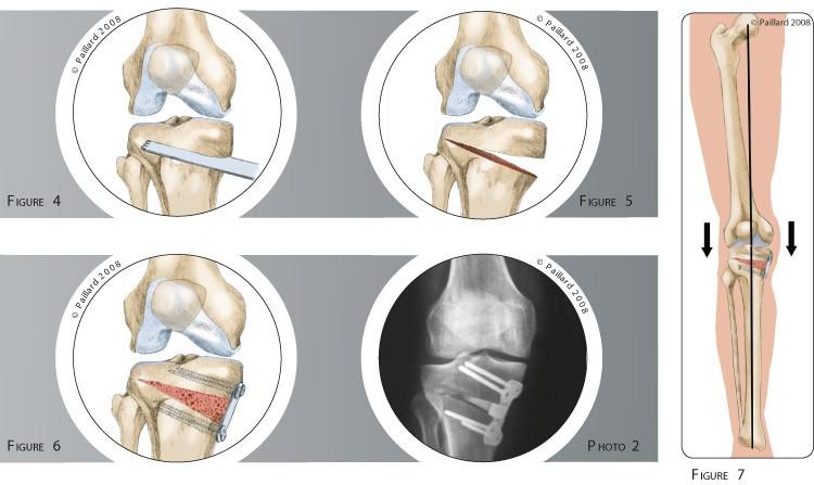 Qu'est ce qu'une ostéotomie tibiale de valgisation? Définition par dr Paillard