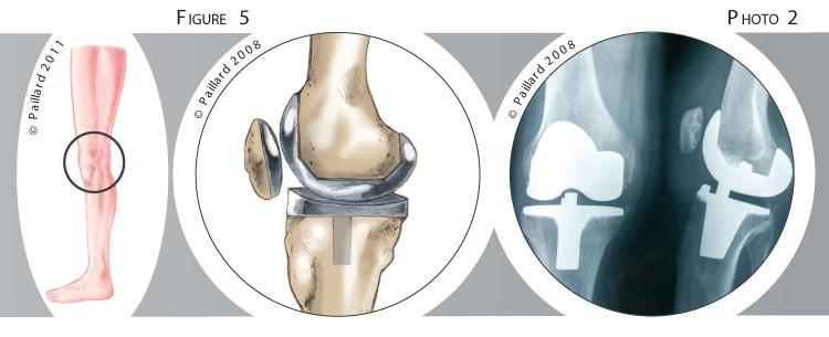 Traitement de l'arthrose du genou par prothèse totale à Paris - Dr Paillard
