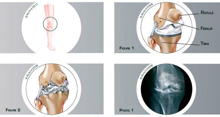 Qu'est ce qu'une arthrose du genou? Définition par dr Paillard