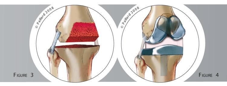 Qu'est ce qu'une prothèse totale du genou? Définition par dr Paillard