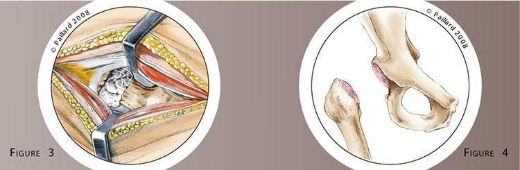 Prothèse totale de la hanche: Chirurgie par Dr Paillard à Paris