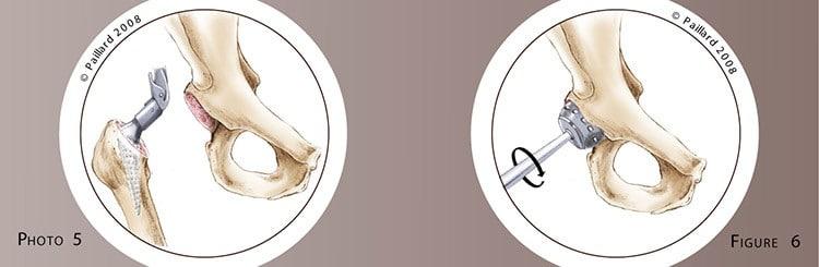 Chirurgie de la hanche à Paris: Prothèse totale de la hanche - Dr Paillard