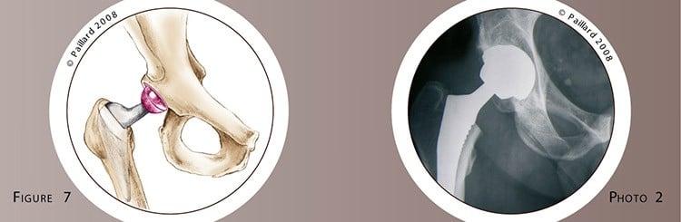 Qu'est ce qu'une arthrose de la hanche? Définition par dr Paillard