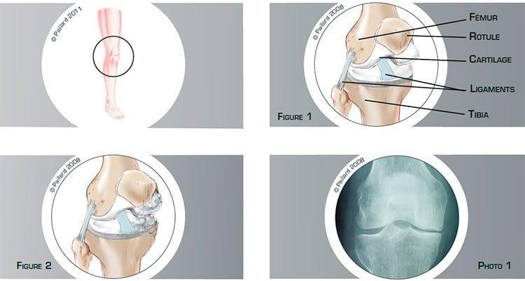 Qu'est ce qu'une arthrose partielle du genou? Définition par dr Paillard