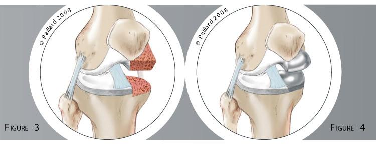 Qu'est ce qu'une prothèse unicompartimentale du genou? Définition par dr Paillard
