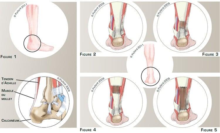 Rupture du tendon d'Achille: Définition par dr Paillard, Chirurgien orthopédique à Paris