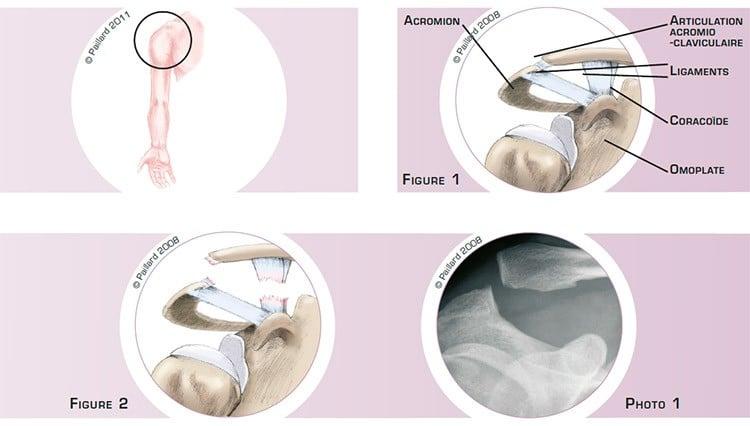 Qu'est ce qu'une luxation acromio-claviculaire? Définition par dr Paillard: Chirurgien orthopédique