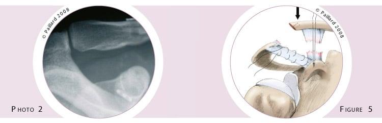 Traitement de la luxation acromio-claviculaire à Paris - Dr Paillard : Chirurgien orthopédique