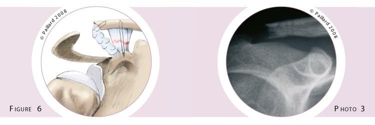 Stabilisation acromio-claviculaire (Chirurgie de l'épaule) à Paris par docteur Paillard