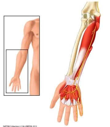Qu'est-ce qu'une compression du nerf ulnaire (ou nerf cubital)? Définition par dr Paillard