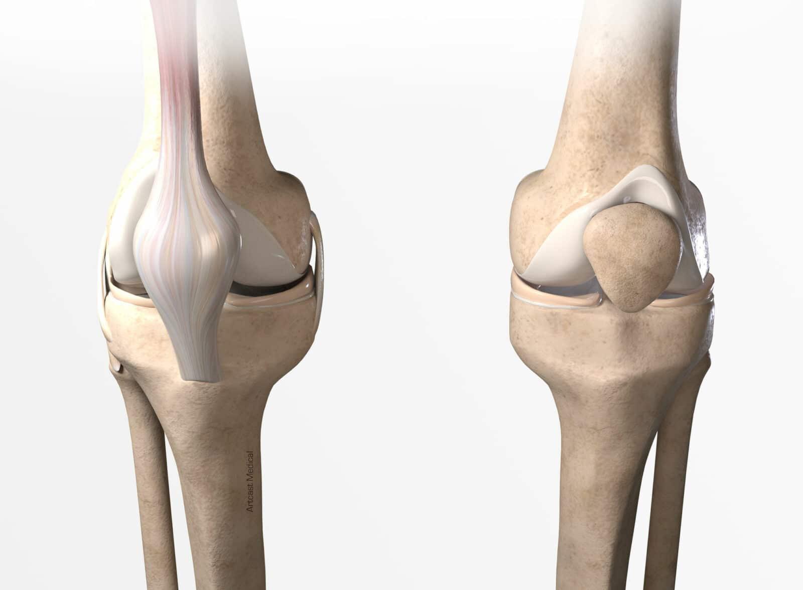 Les pathologies du genou: Symptômes et traitement à Paris - Dr Paillard