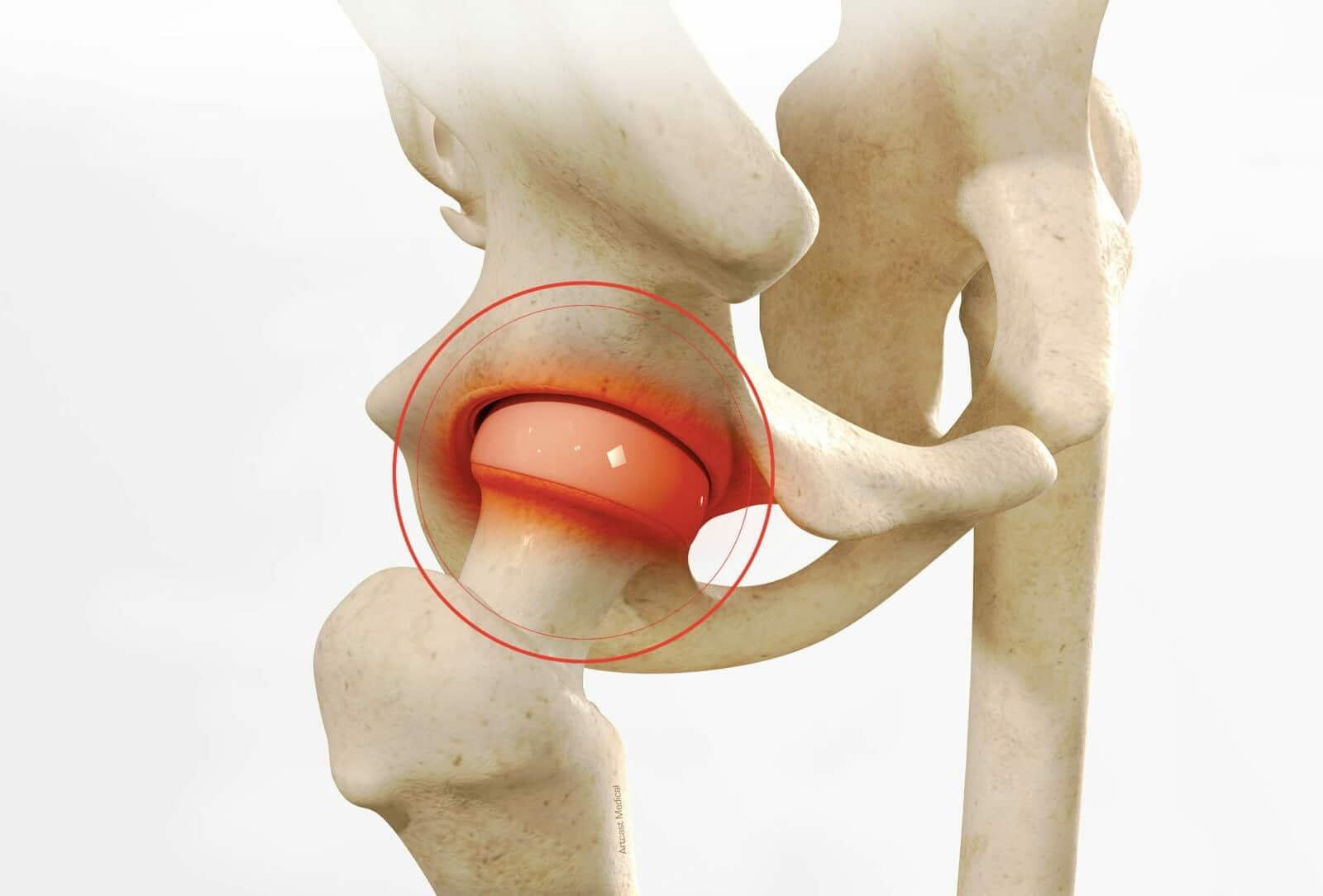 Chirurgie de la hanche à Paris: Arthroscopie de la hanche - Dr Paillard