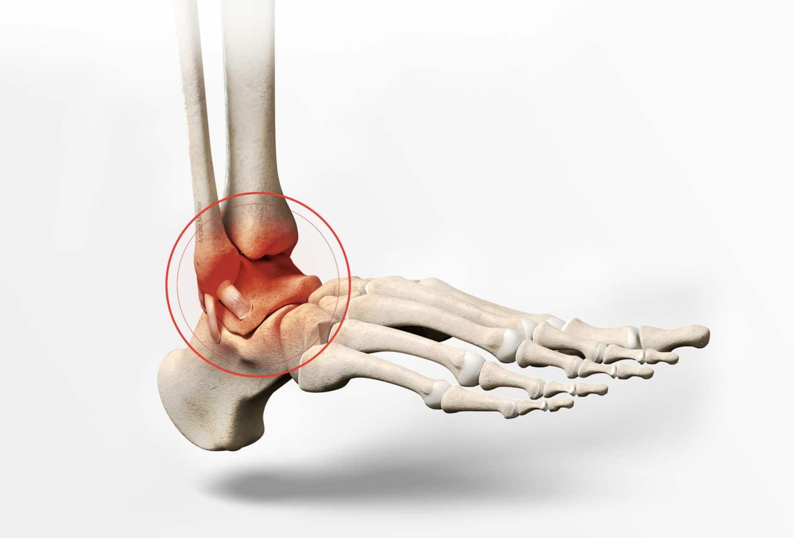 Traitement de l'arthrose de la cheville à Paris - Dr Paillard