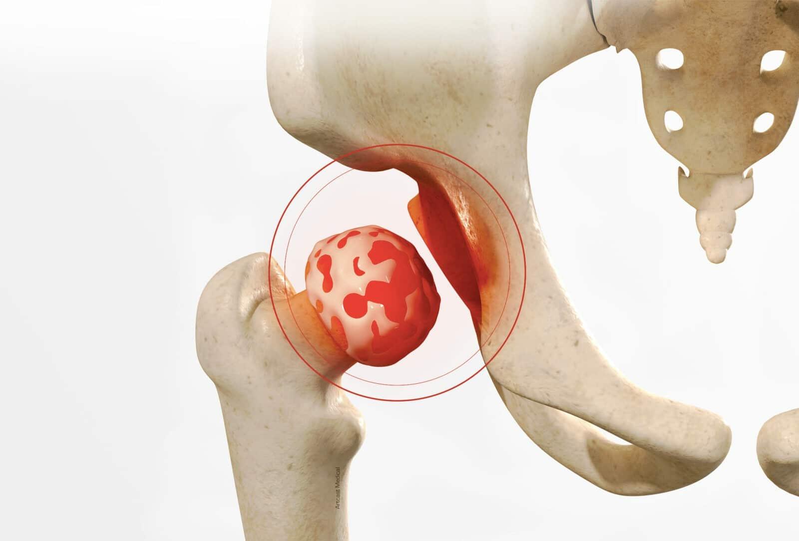 Traitement de l'arthrose de la hanche (Coxarthrose) à Paris - Dr Paillard