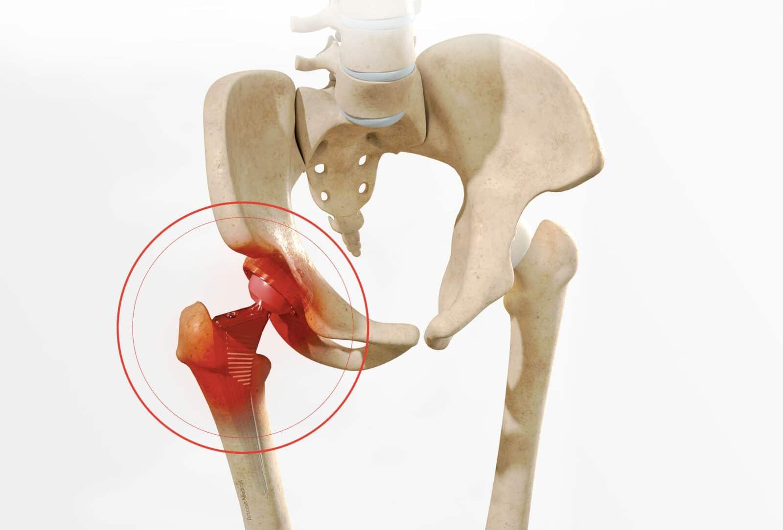 Descellement prothèse de hanche: Symptômes, infos et traitement à Paris - Dr Paillard