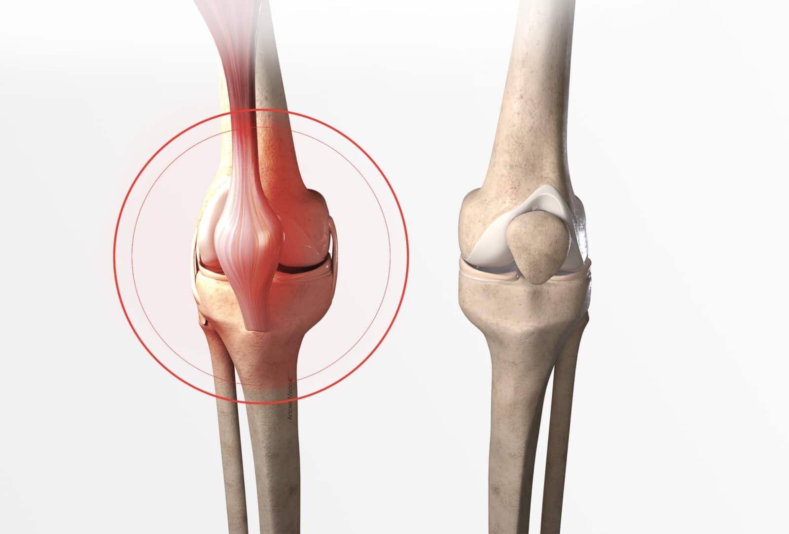 Entorse du genou: symptômes et traitement à Paris - Dr Paillard