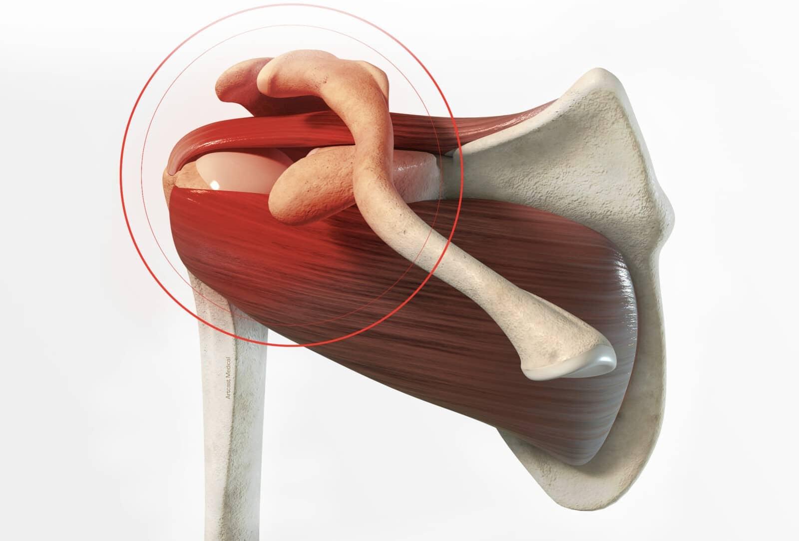 Traitement fracture de l'épaule (humérus et omoplate) à Paris - Dr Paillard