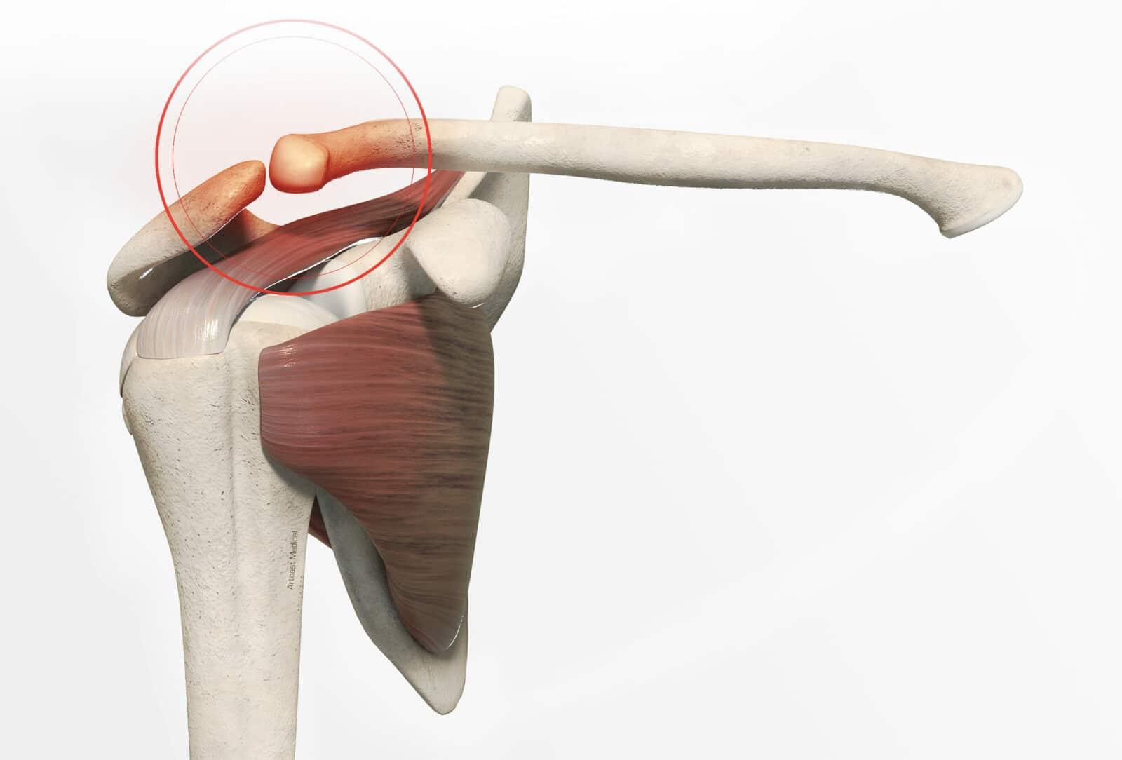 Traitement fracture de la clavicule à Paris - Dr Paillard: Chirurgien orthopédique