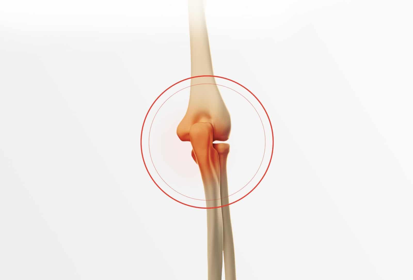 Traitement fracture du coude à Paris - Dr Paillard: Chirurgien orthopédique