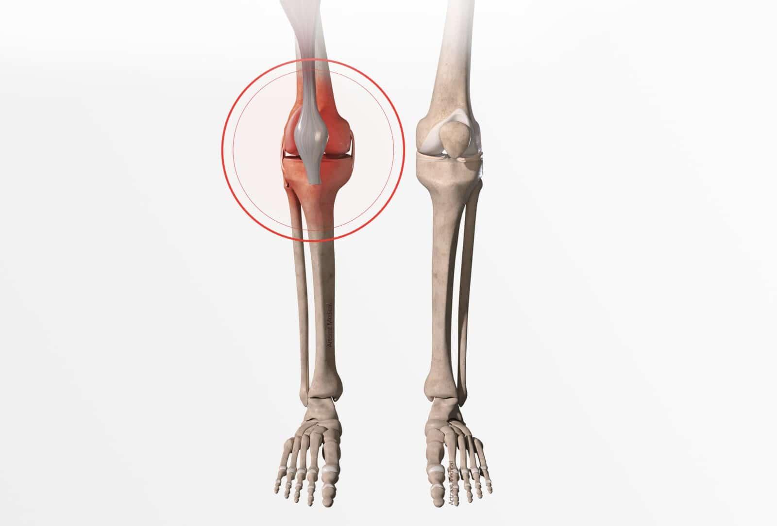 Traitement fracture du genou (fracture du plateau tibial et de la rotule) à Paris