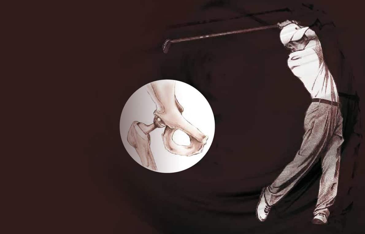 Chirurgie de la hanche à Paris - dr Paillard: Chirurgien orthopédique