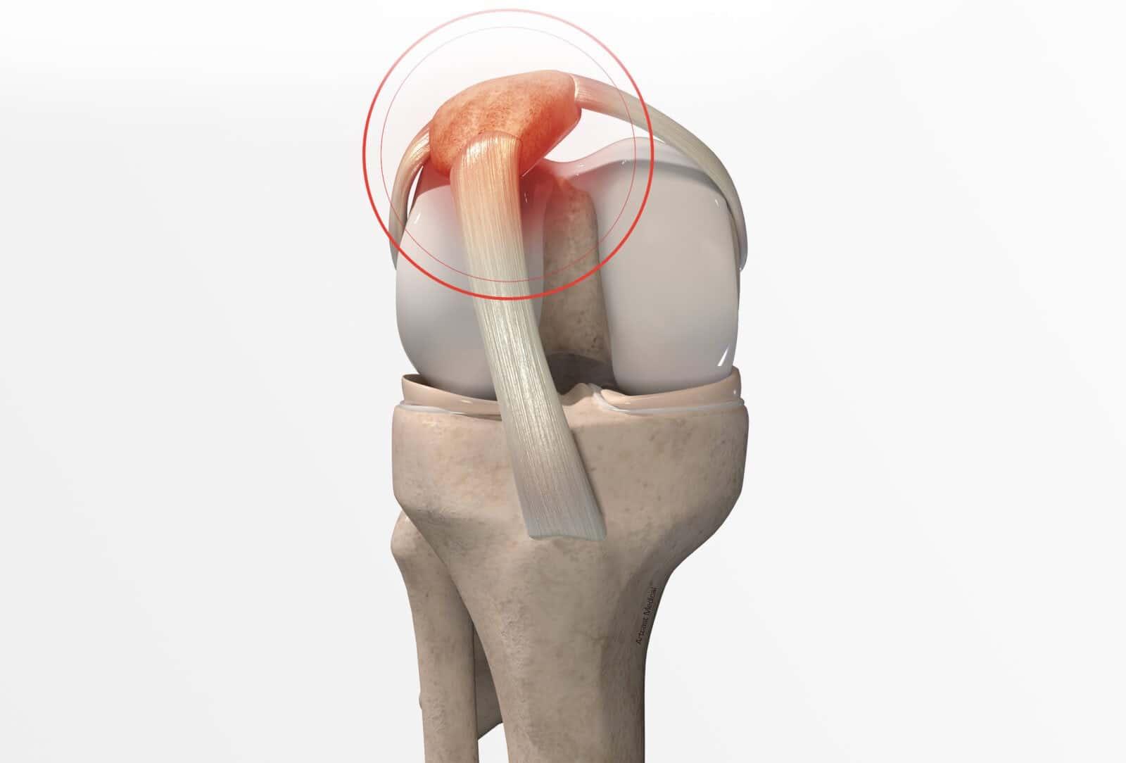 Traitement de l'nstabilité rotulienne à Paris - Dr Paillard: Chirurgien orthopédique
