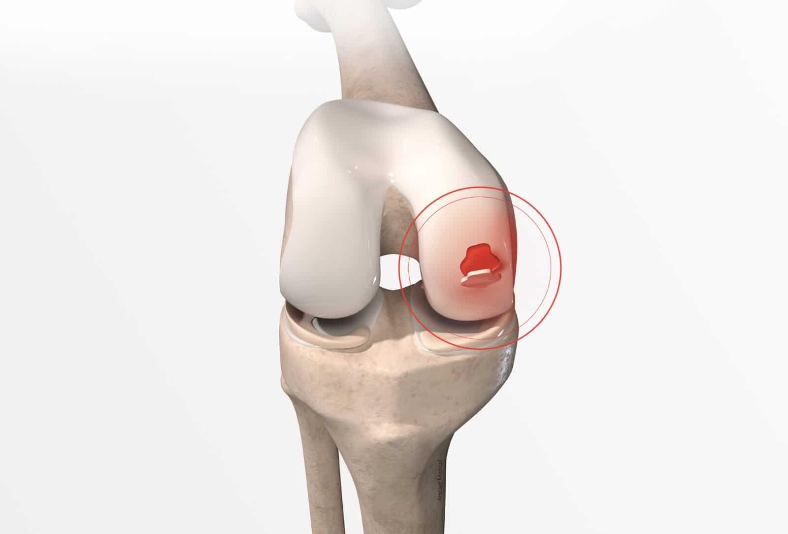 Traitement de la lésion du cartilage du genou (cartilage genou abimé) à Paris - Dr Paillard