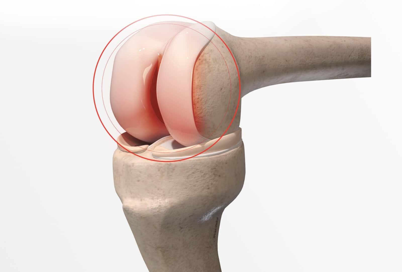 Nécrose du condyle interne du genou: Diagnostic et traitement à Paris - Dr Paillard