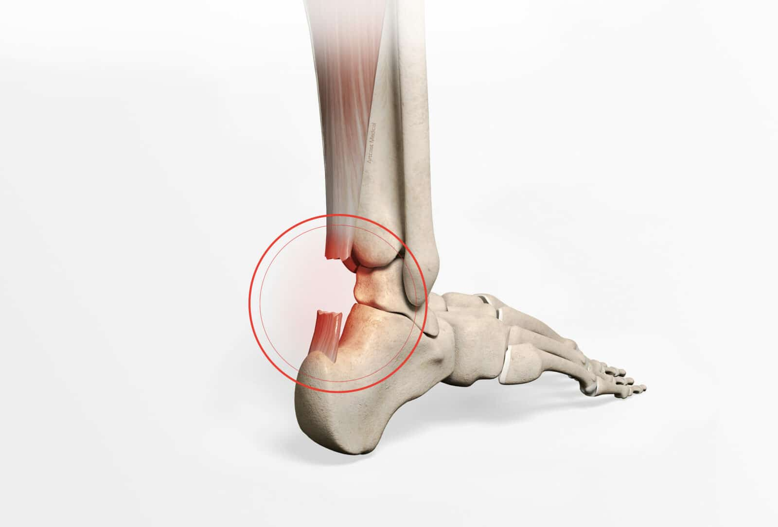 Chirurgie de la cheville à Paris: Peignage du tendon d'Achille - dr Paillard