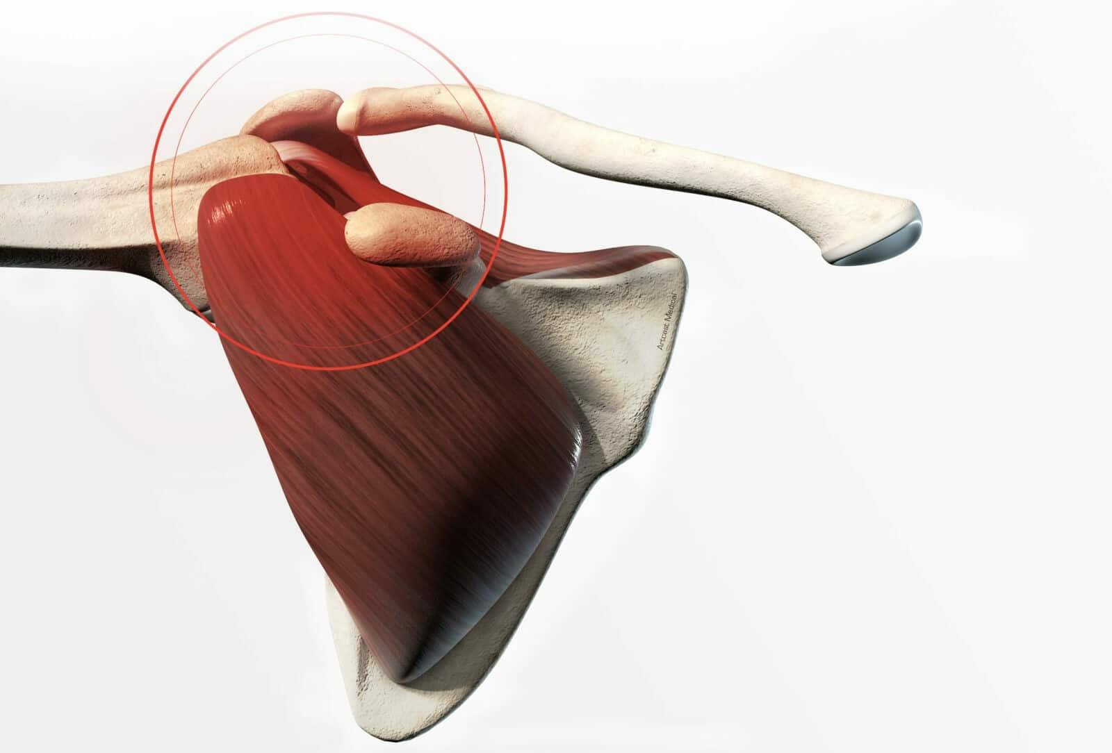 Chirurgie de l'épaule à Paris: Réparation de la coiffe des rotateurs - Dr Paillard Paris