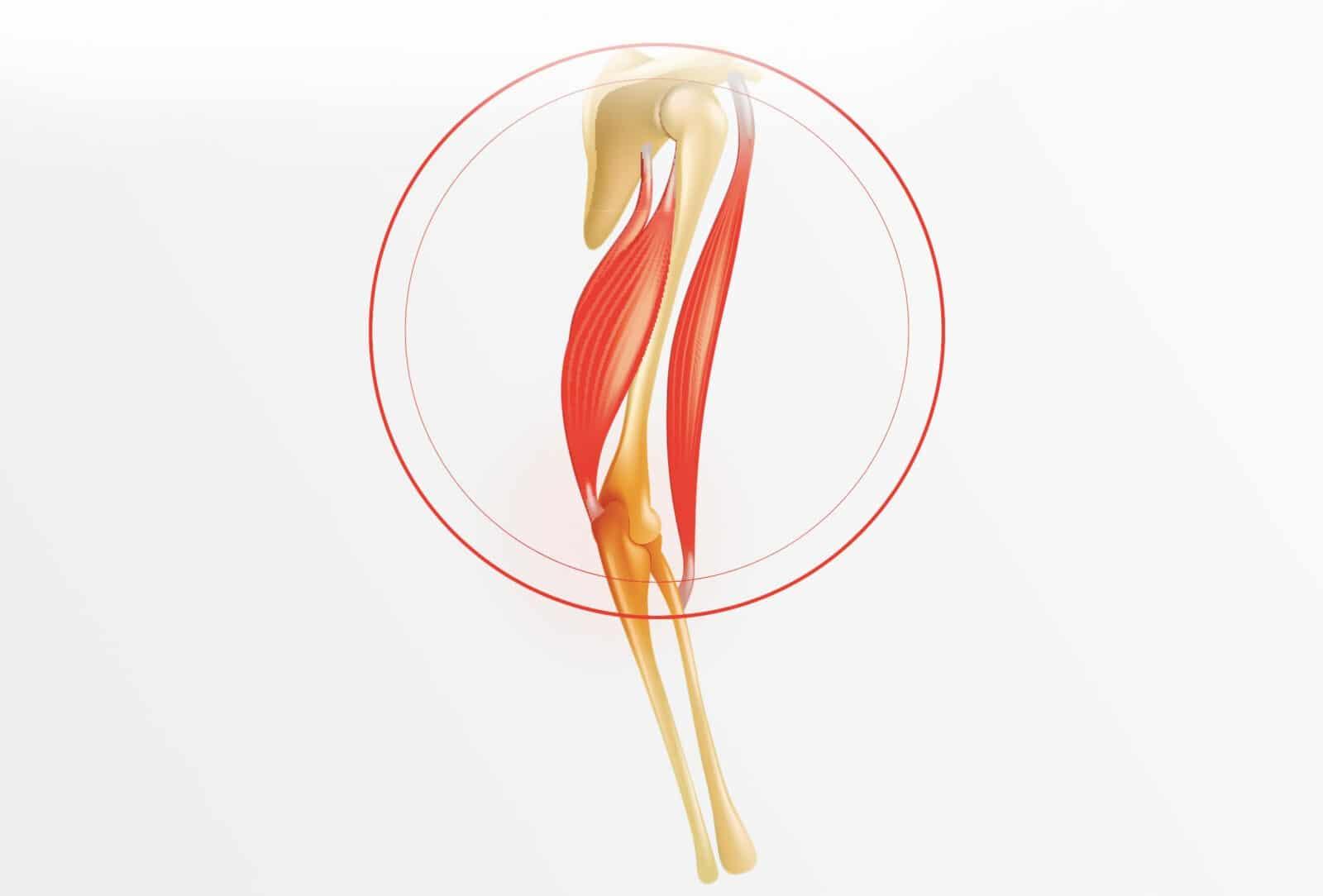 Rupture distale du biceps : causes et traitement à Paris - Dr Paillard, chirurgien orthopédique