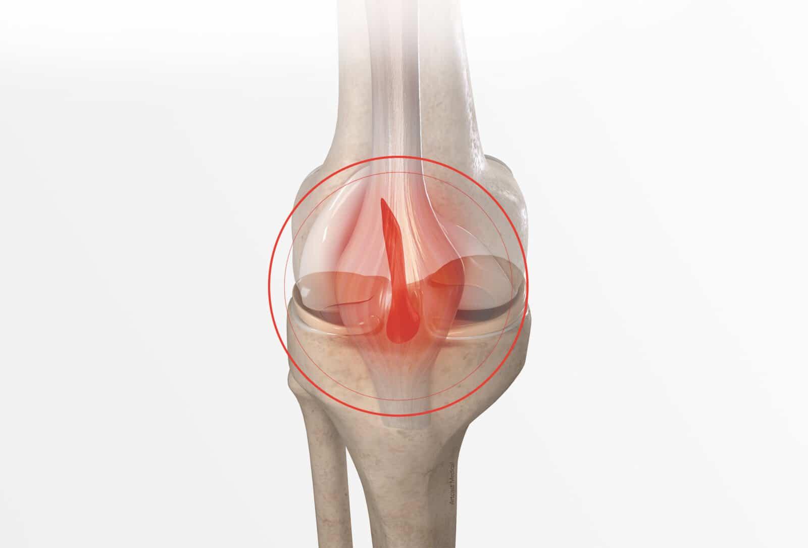 Traitement de la rupture du ligament croisé antérieur (LCA) à Paris - Dr Paillard