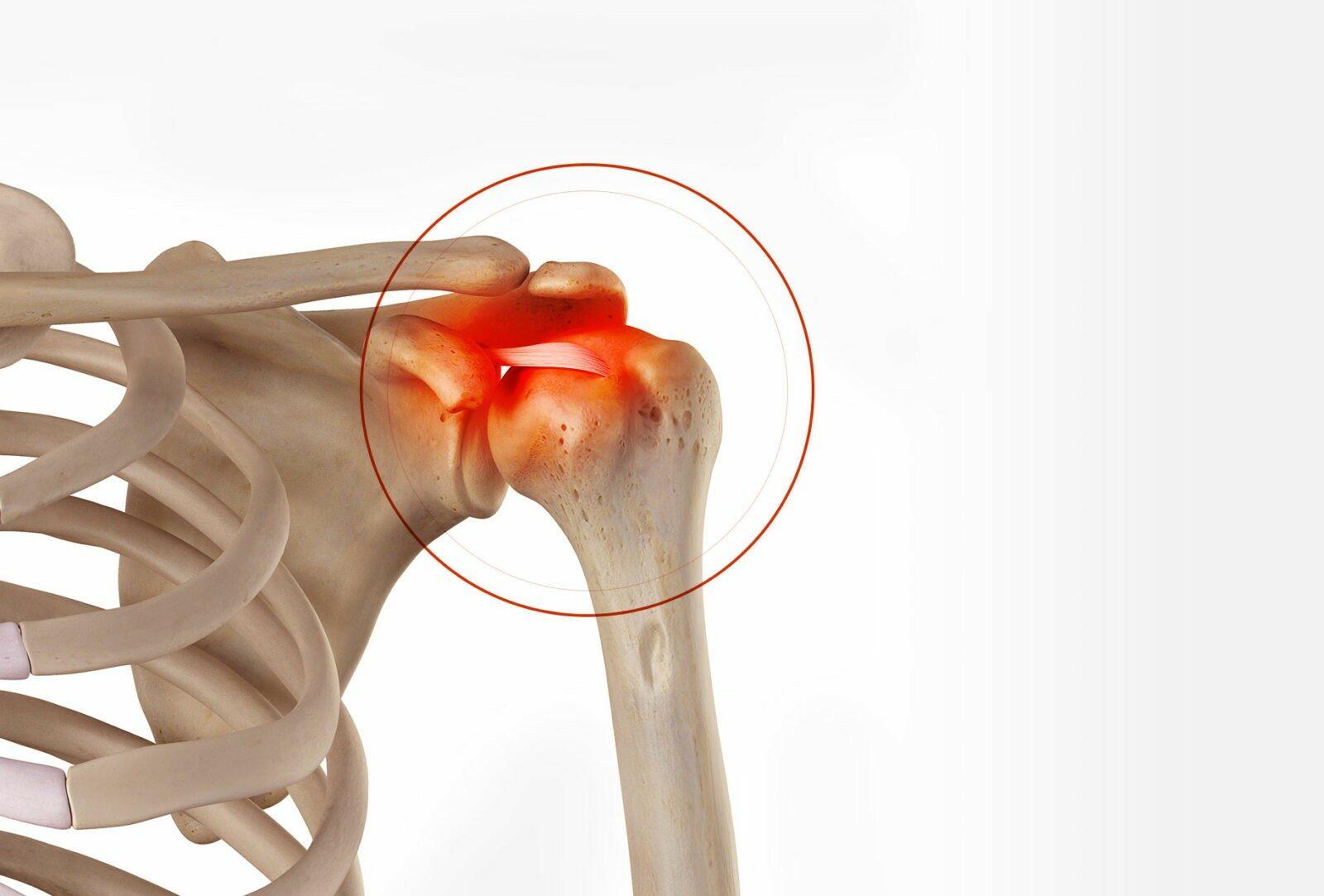 Chirurgie de l'épaule à Paris: Stabilisation acromio-claviculaire - Dr Paillard